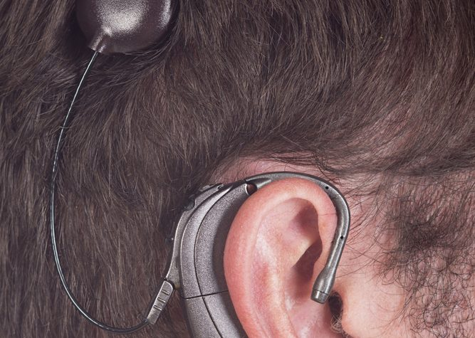 Hearing Loss in Gaucher Disease Type 1 Patient Improved with Cochlear Implants