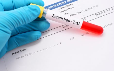 High Levels of Iron During Therapy Linked to Residual Gaucher Disease, Study Finds